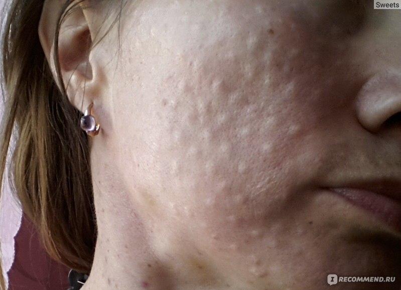 аллергия на уколы гиалуроновой кислоты фото