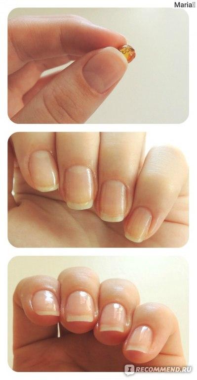 Как удлинить ногтевую пластину в домашних условий
