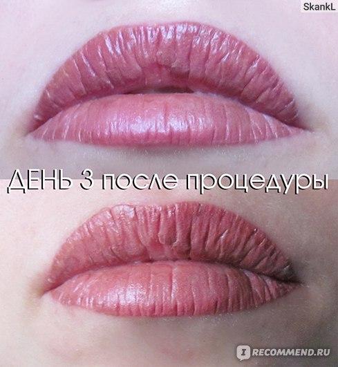 Корочка на губах от перманентного макияжа