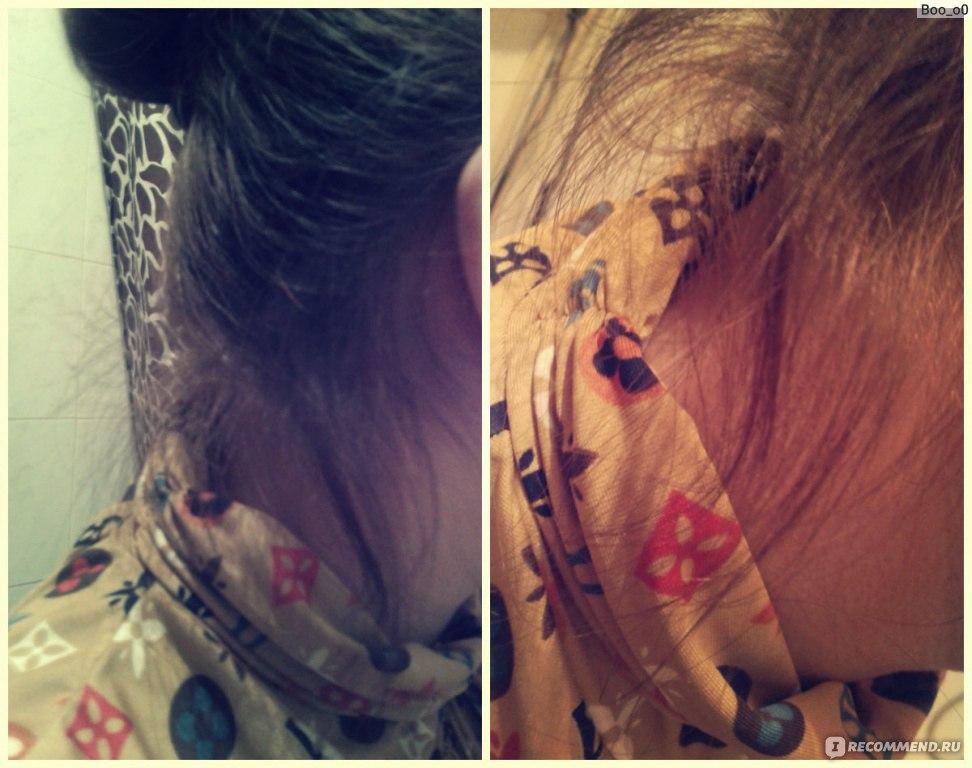 Кера-нова маска против выпадения волос отзывы