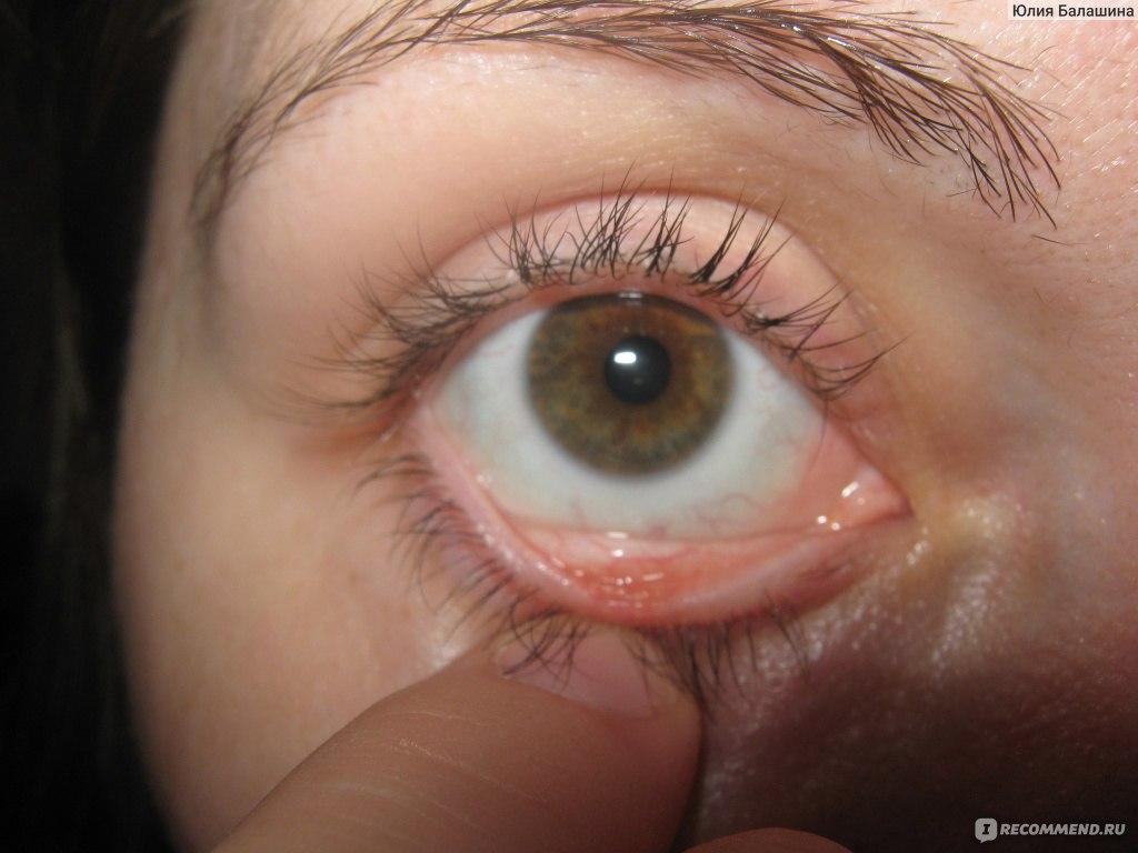 проявляется нарушение если халязион прорвется через кожу для школьного