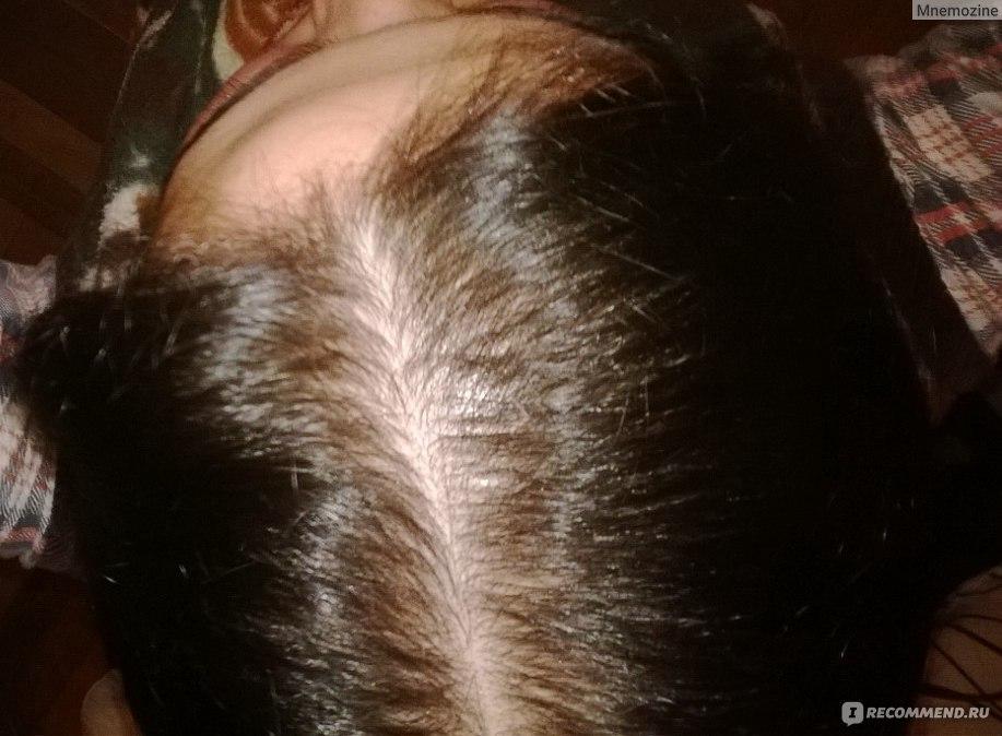 Выпадают волосы ответы трихолога