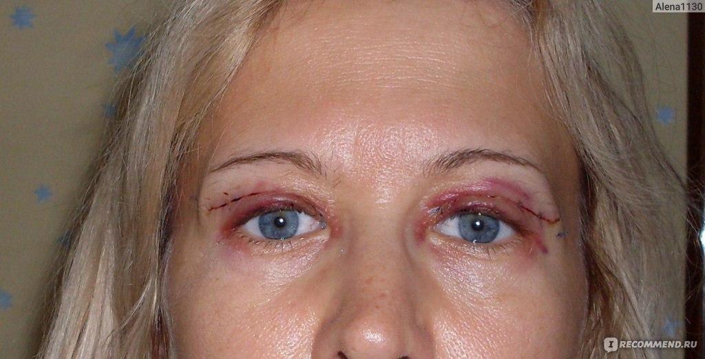 После блефаропластики болит один глаз
