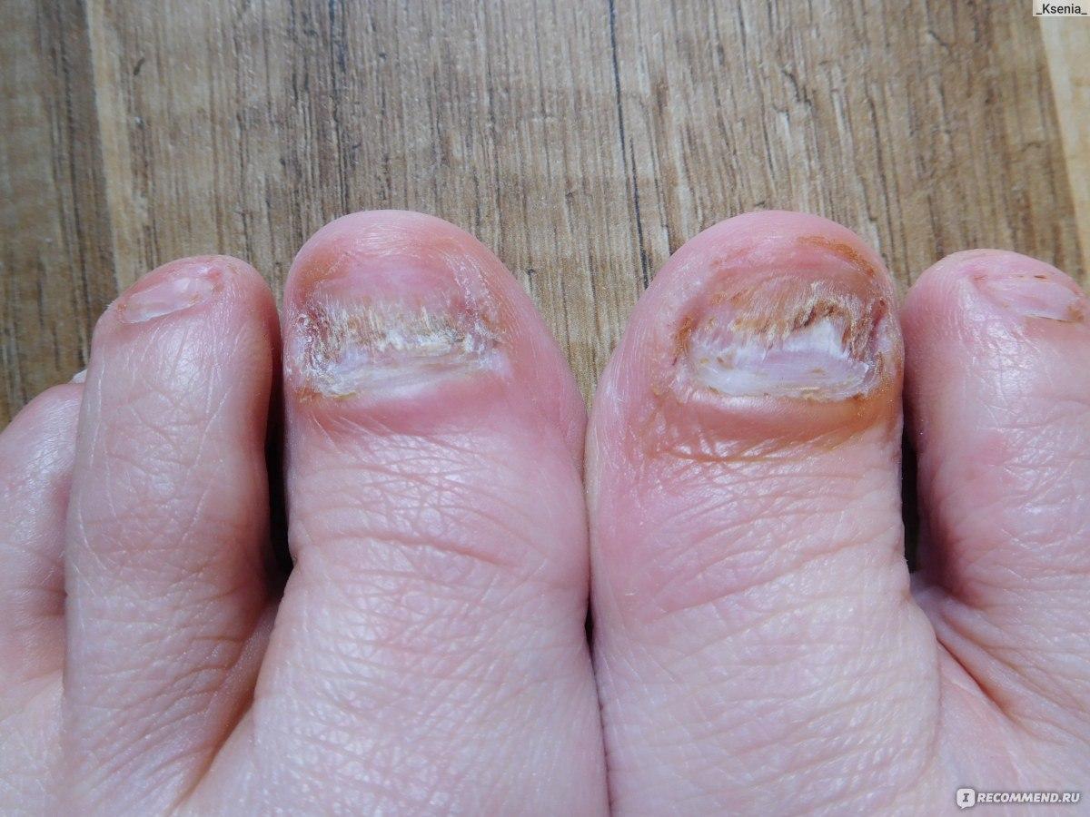 Лечение грибка ногтей доместосом
