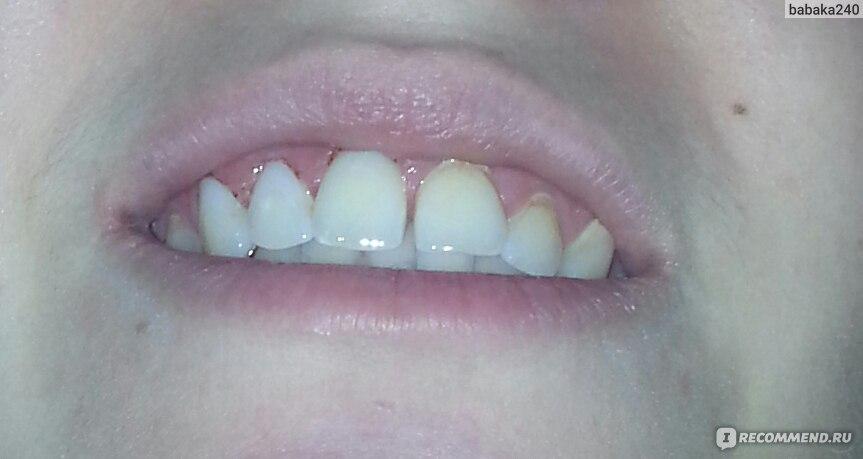 Убрать камни с зубов в домашних условиях отзывы 80