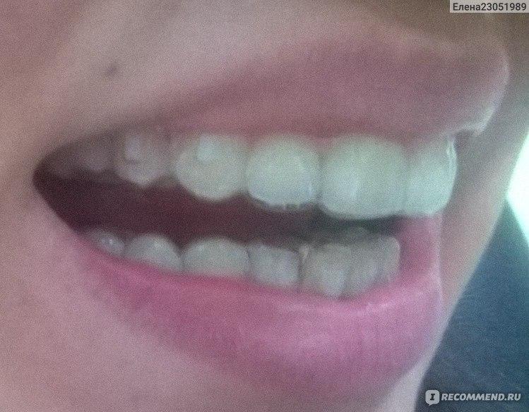 Мои зубы брекеты виниры
