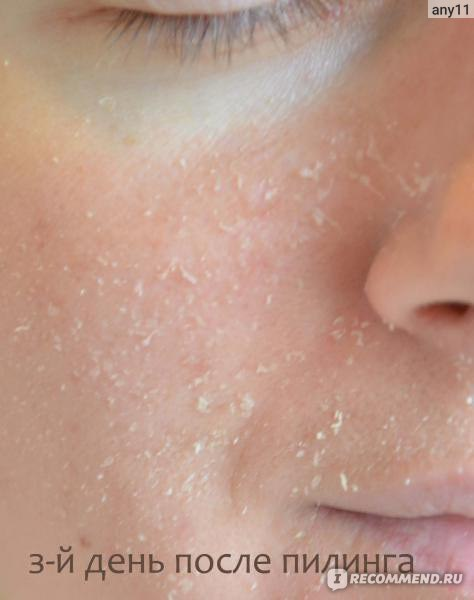 Что делать если лицо шелушится в домашних условиях - Luboil.ru