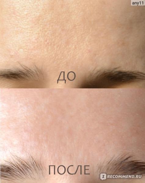 Фотоомоложение лица в санкт-петербурге | фото до и после.