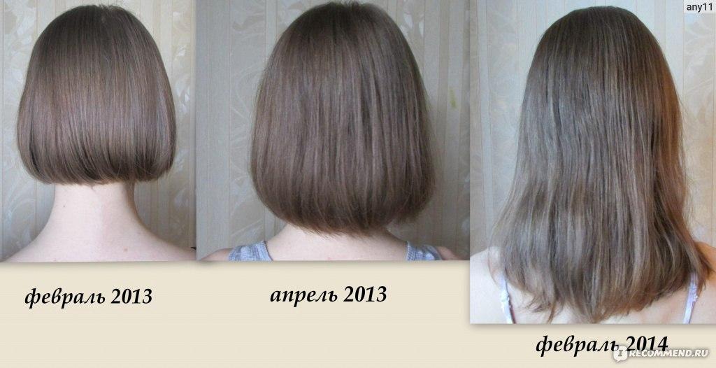 Как сделать так чтобы отрасли волосы