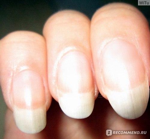 Что делать если ногти не растут в домашних условиях 430