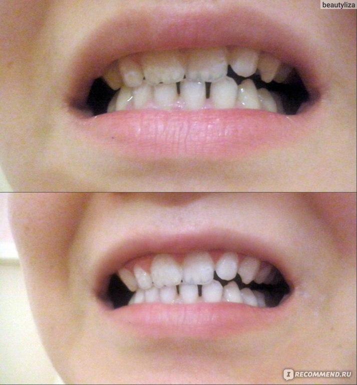 зубы после отбеливания zoom