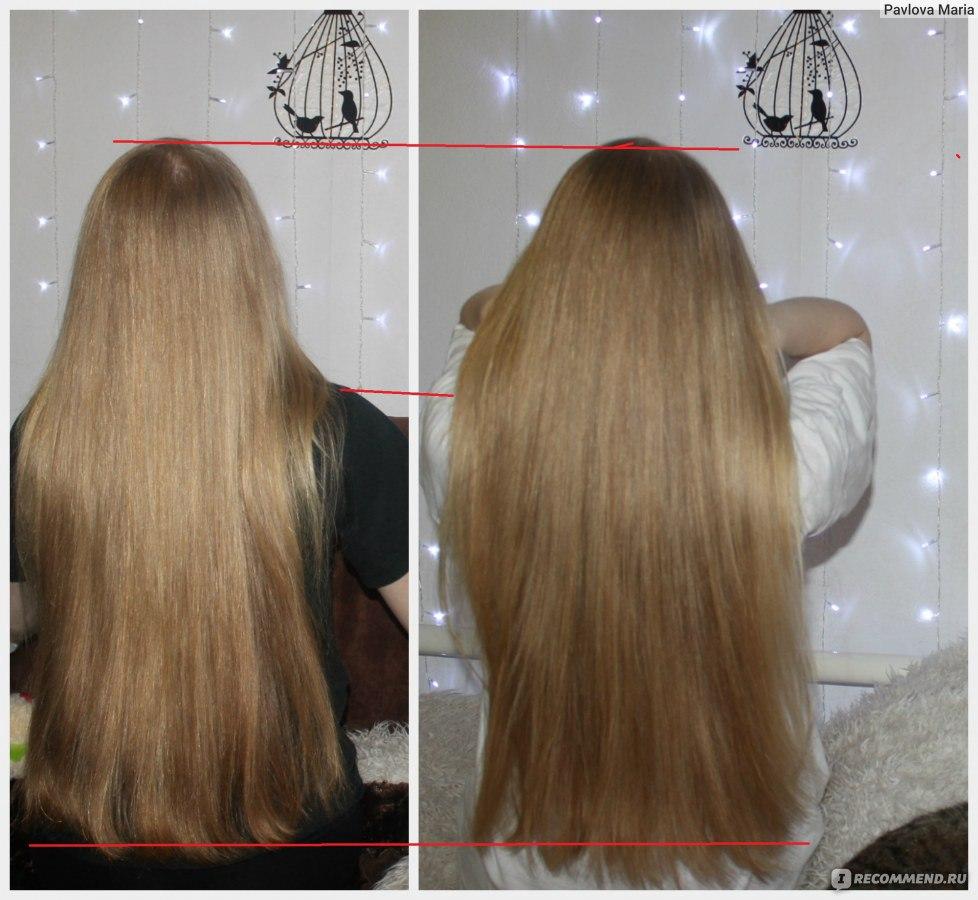 Как лечить голову от выпадения волос