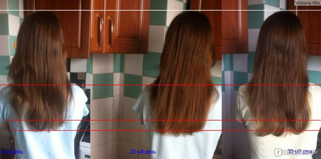 Рост волос см в месяц