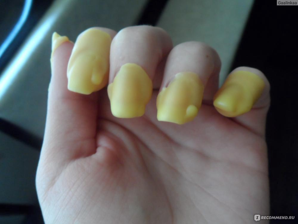 клюющие ногти фото