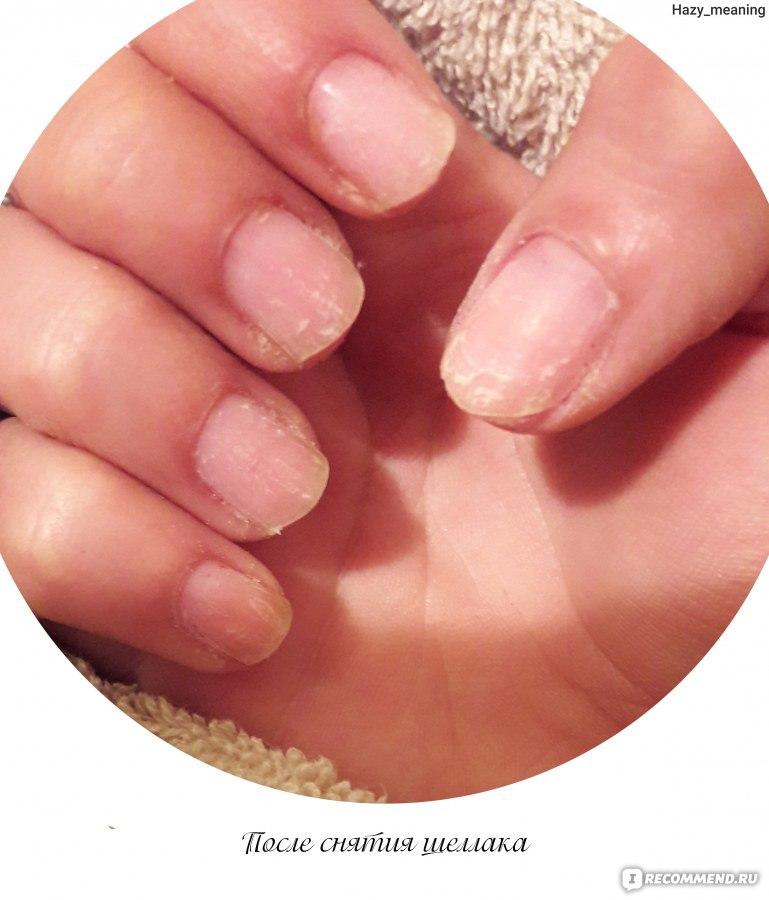 Как лечить ногти после шеллака в домашних условиях
