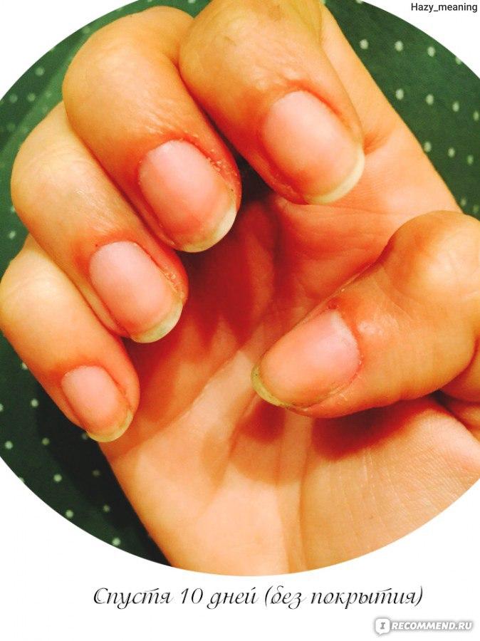 Фото ногтей кто чем болеет
