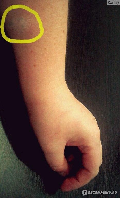 Как сделать тату одной иглой 590