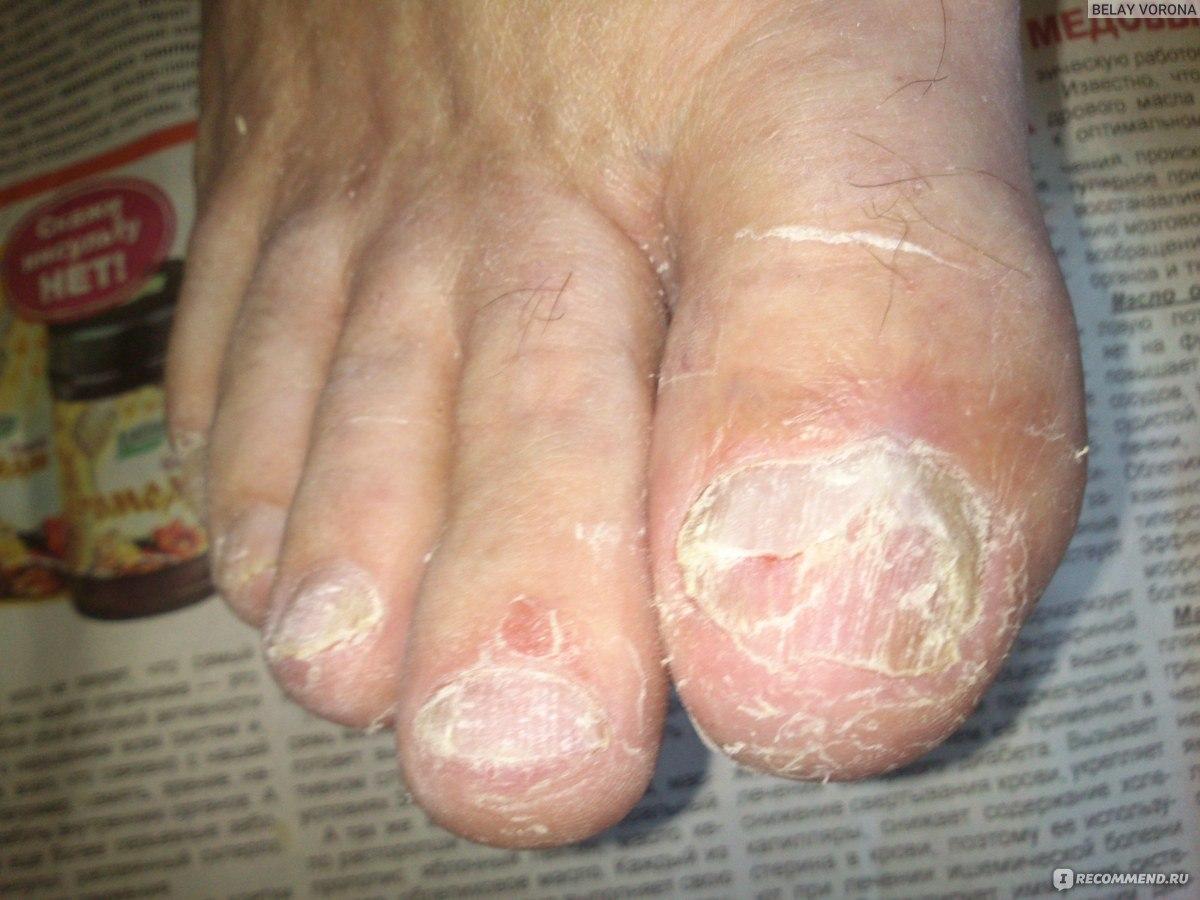 Куриный ноготь на ногах