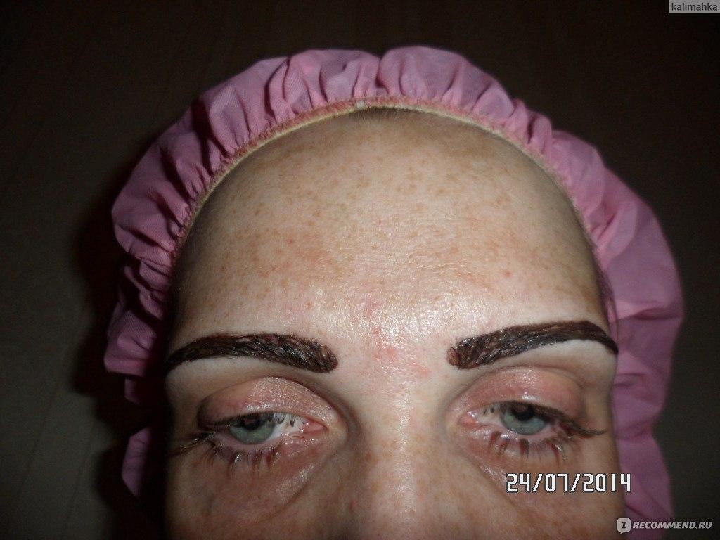 покрасила брови пошла аллергия что делать