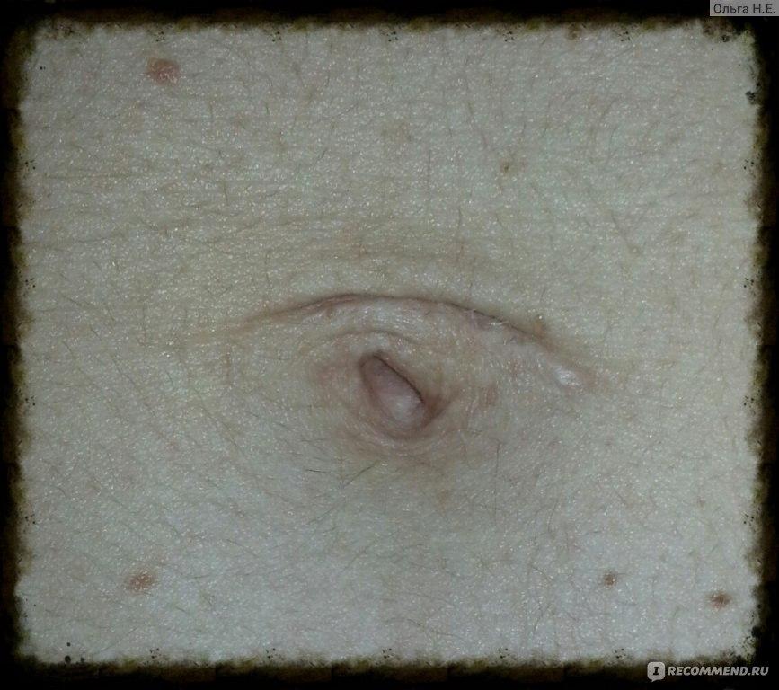 Беременность после лапароскопии эндометриоза