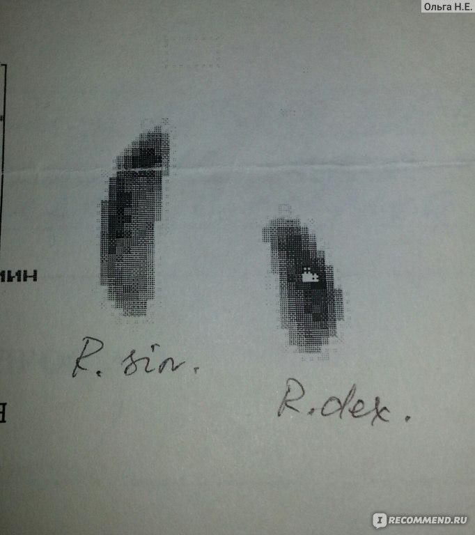 Нефропексия фото
