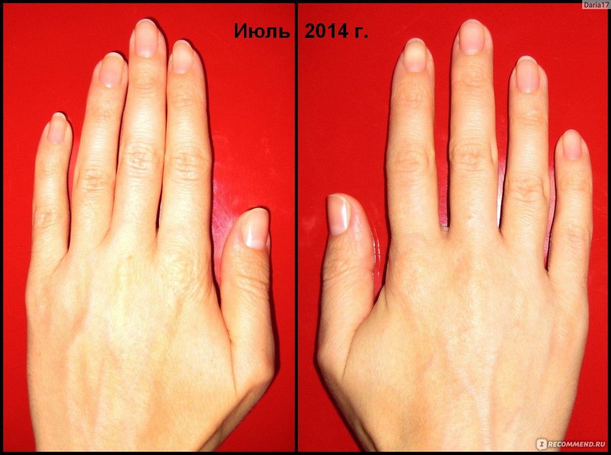 Маникюр по форме и длине ногтей
