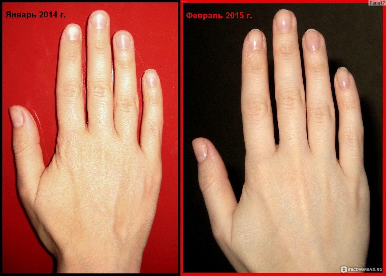 Изменить форму ногтей на руках