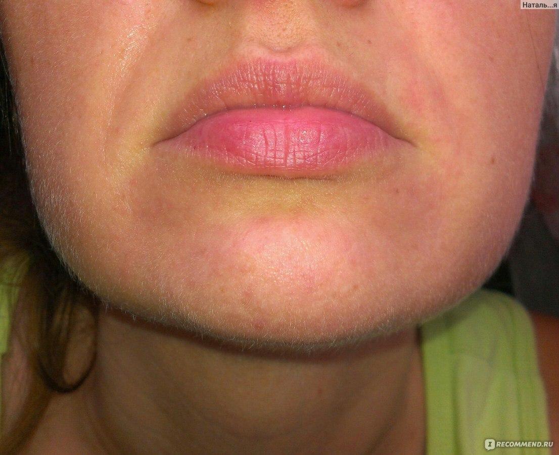 дерматит пероральный фото