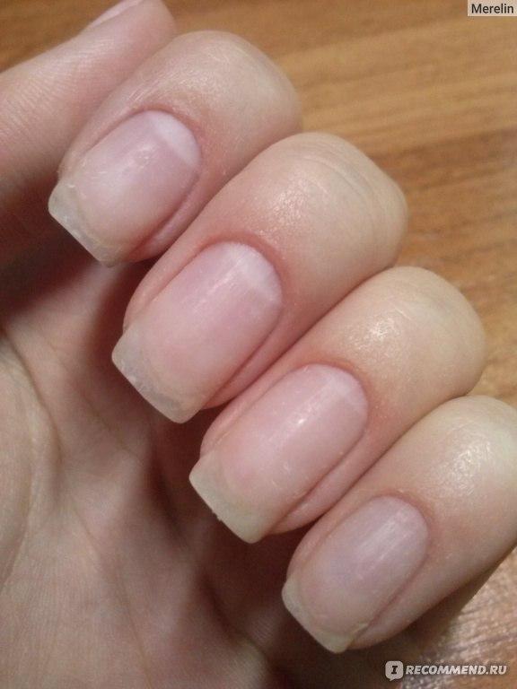 Почему отслаивается биогель от ногтей