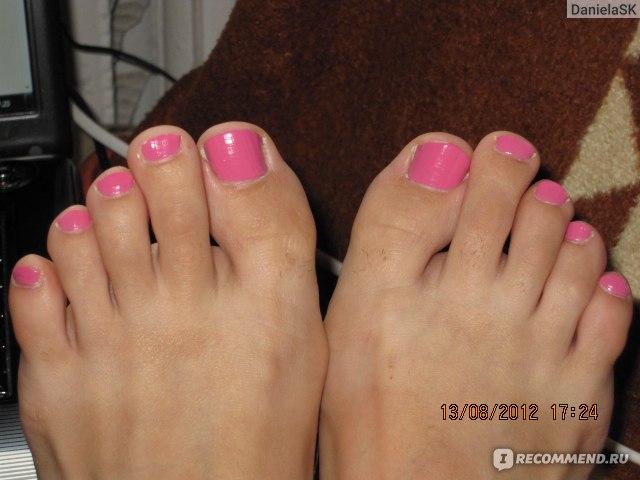 Почему крошатся ногти на ногах что делать чем лечить