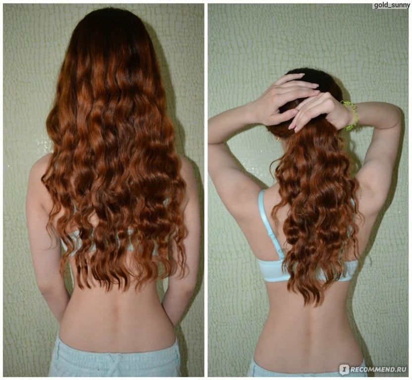 Выпадают волосы при панкреатите