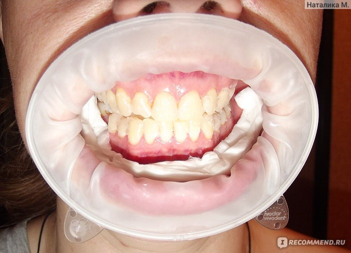 Бюджетная система отбеливания зубов Global White by