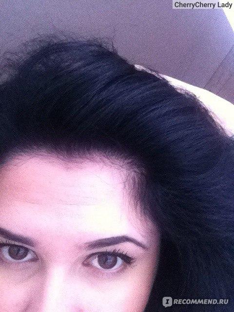Ампулы для роста волос отзывы с фото