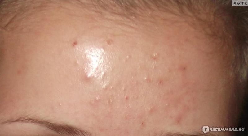 Прыщи от клещей на лице лечение