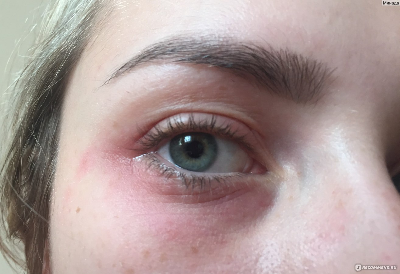 крем от аллергии фото