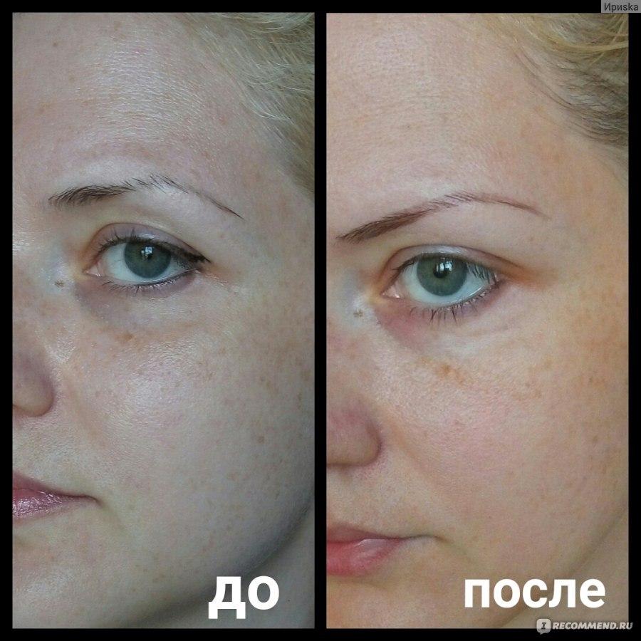 крем до и после отбеливающий отзывы