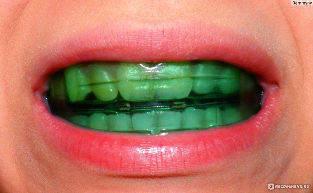 Трейлер для выравнивания зубов