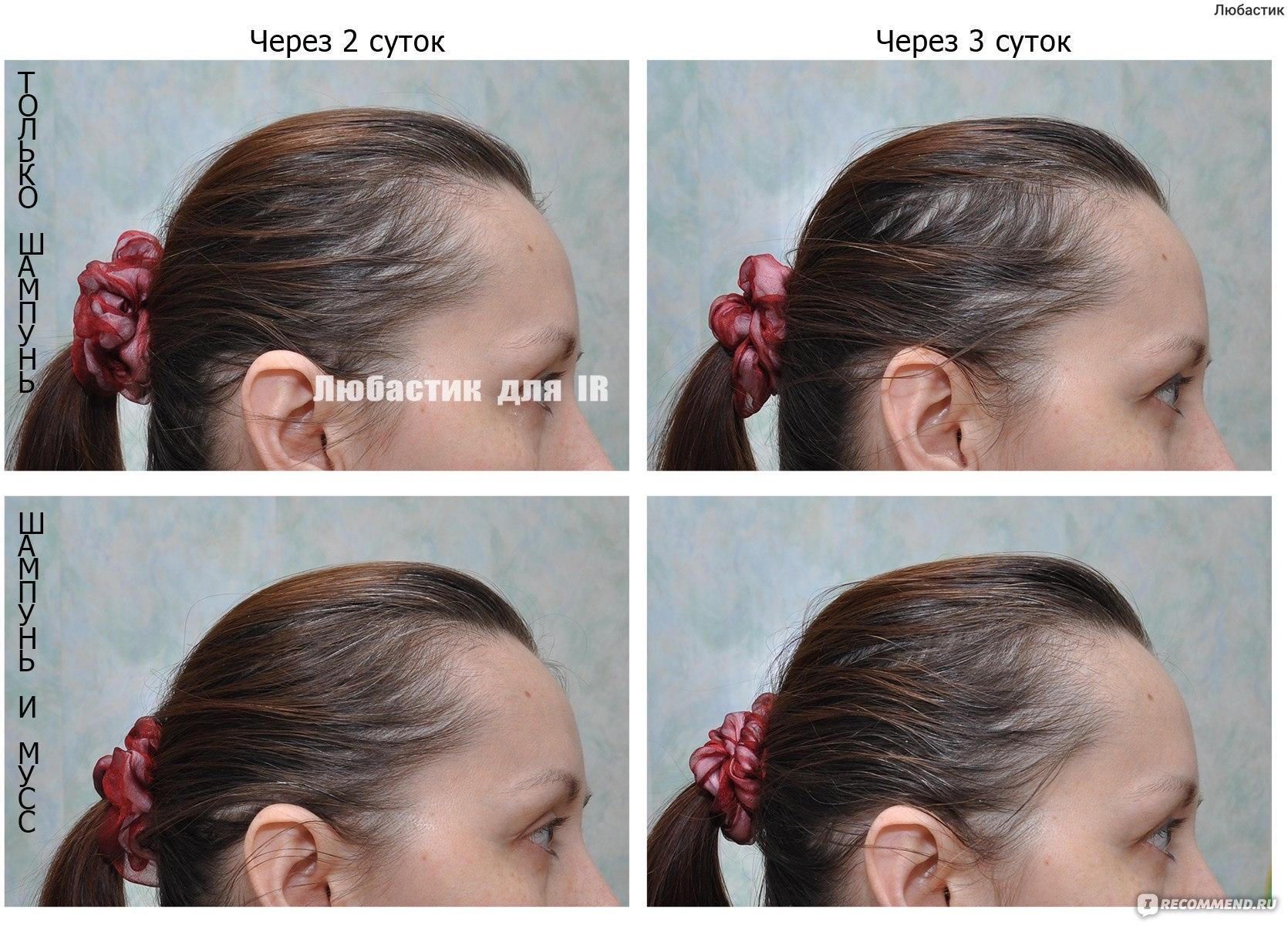 Делаем пилинг для кожи головы