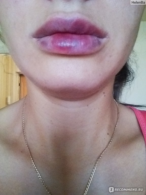 Чем помазать синяки на губах
