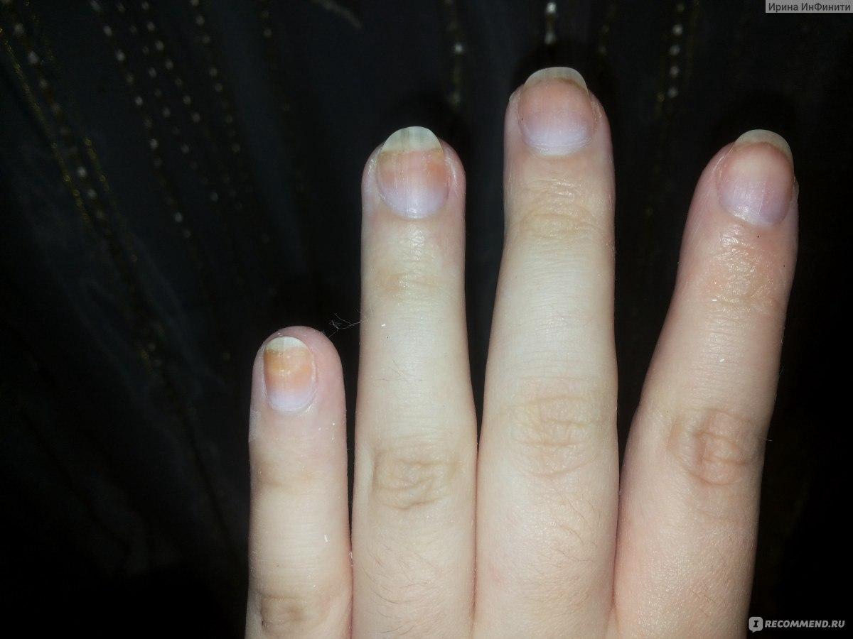 Марганцовка лечение грибка ногтя