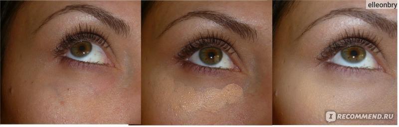 Желтизна глаз у негров