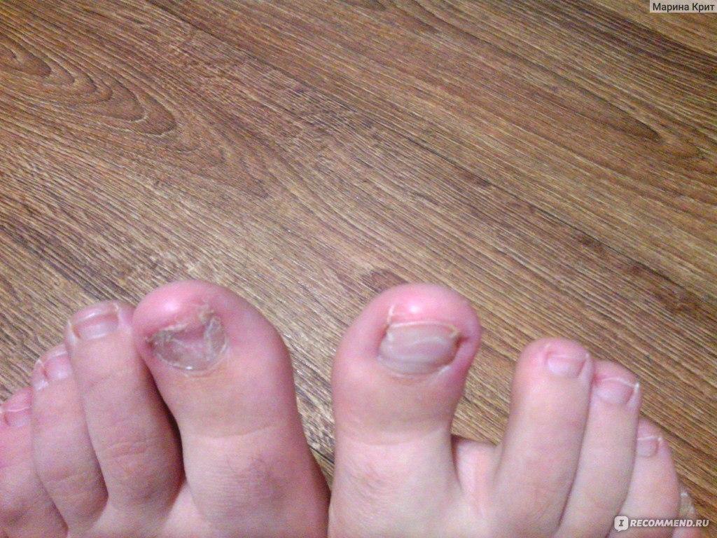 Чем вылечит грибок ногтей ребенку