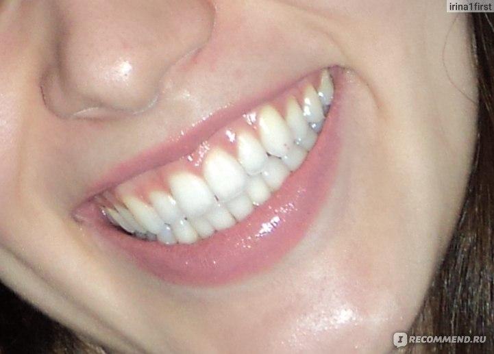 Экспресс отбеливания зубов отзывы