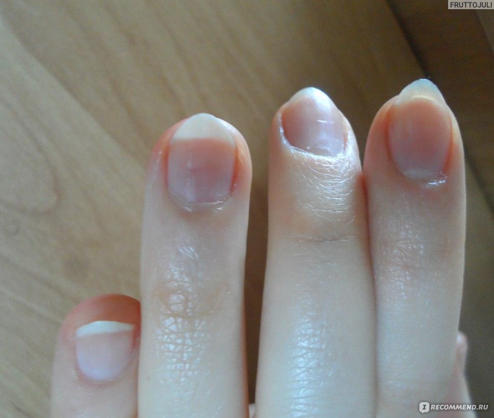 Нарастить ногти быстро в домашних условиях
