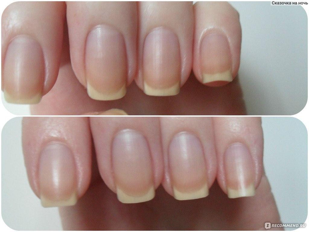 Чем укреплять ногти в домашних условиях йодом 215