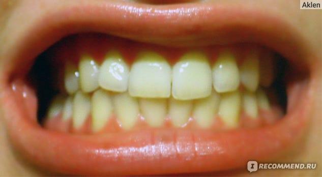 лазерное отбеливание зубов видео
