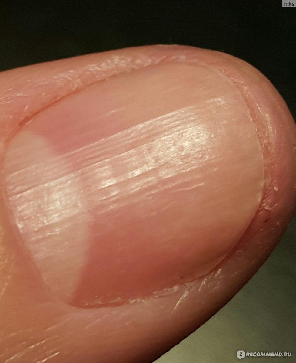 Лак для ногтей Лоцерил: отзывы
