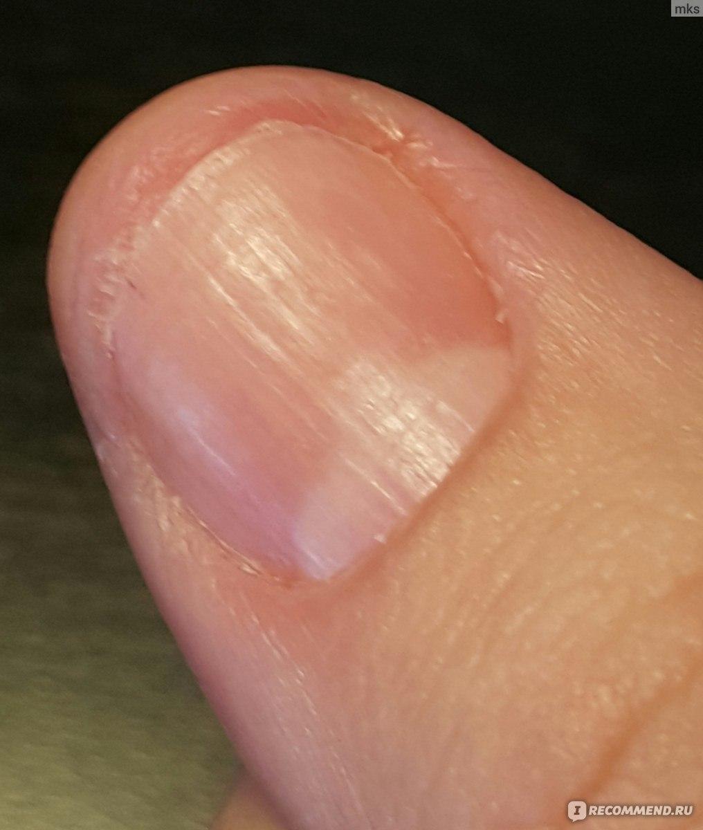 Квасцы при грибке ногтей