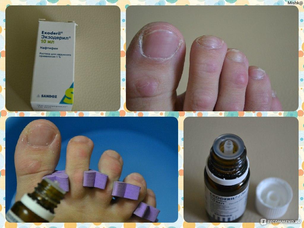 Лечение грибка на ногтях ног экзодерилом