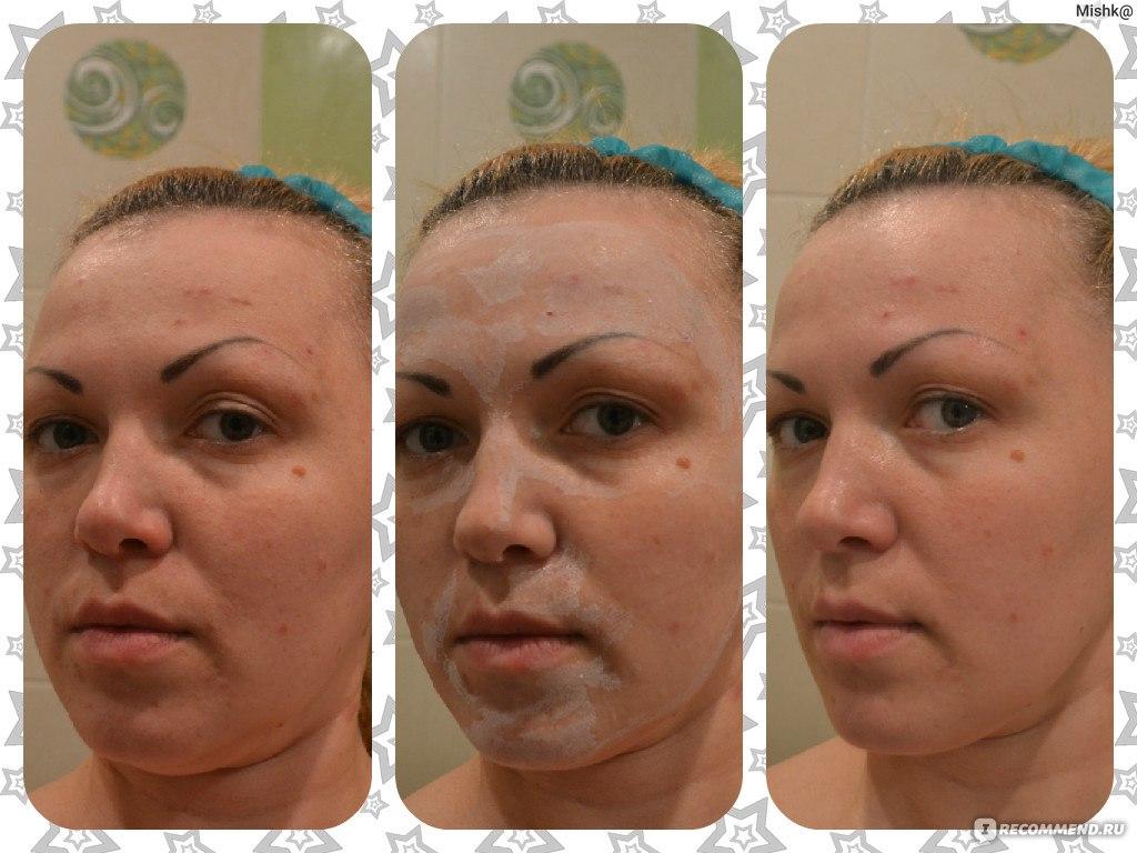 Покраснение кожи на лице после прыщей